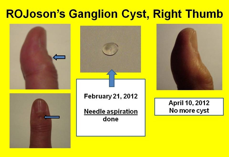 Follow-up on ROJOSON's Ganglion Cyst on Right Thumb ...